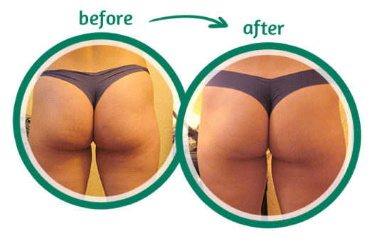 1 Weird Tip To Get Rid Of Cellulite